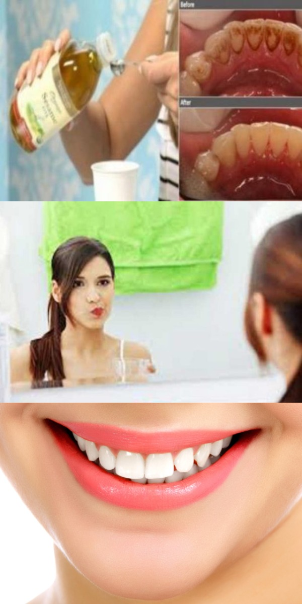 Попрощайтесь с несвежим дыханием, налетом, зубным камнем и уничтожьте вредные бактерии в вашей ротовой полости с помощью только одного ингредиента!