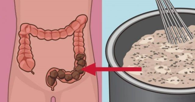 Самодельная смесь, которая очистит ваш кишечник от токсичных отходов!