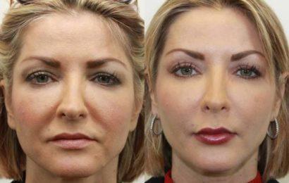 Даже очень дряблая кожа лица после этой процедуры подтянется! Делайте это 1 раз в неделю