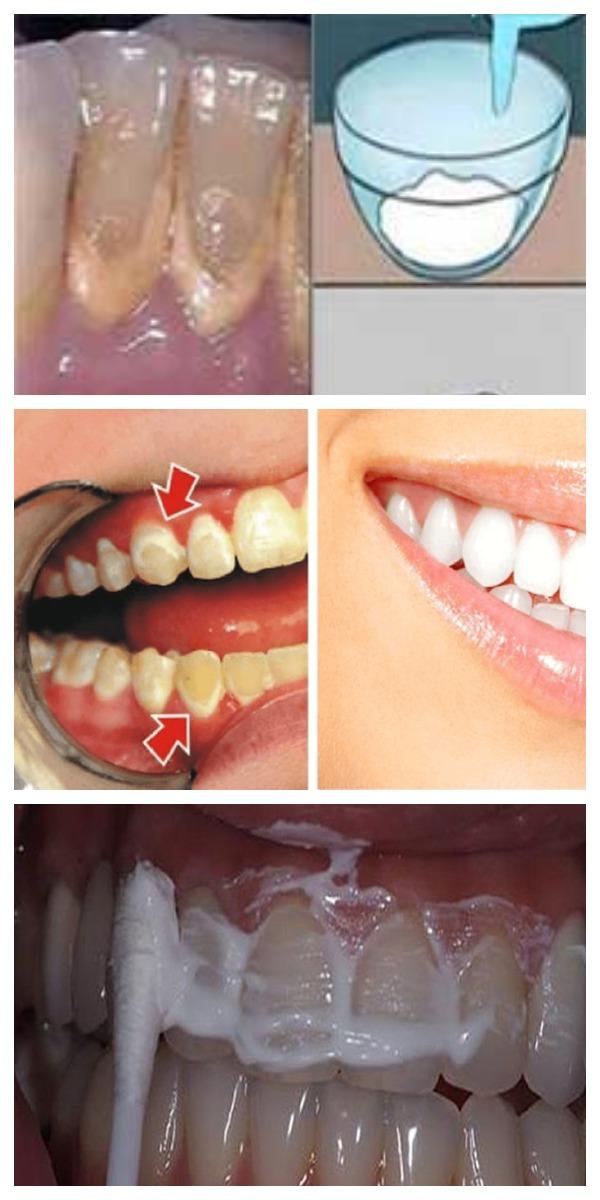 Это средство для полоскания рта УДАЛЯЕТ ЗУБНОЙ НАЛЕТ за 2 МИНУТЫ! Домашнее ЭФФЕКТИВНОЕ СРЕДСТВО!