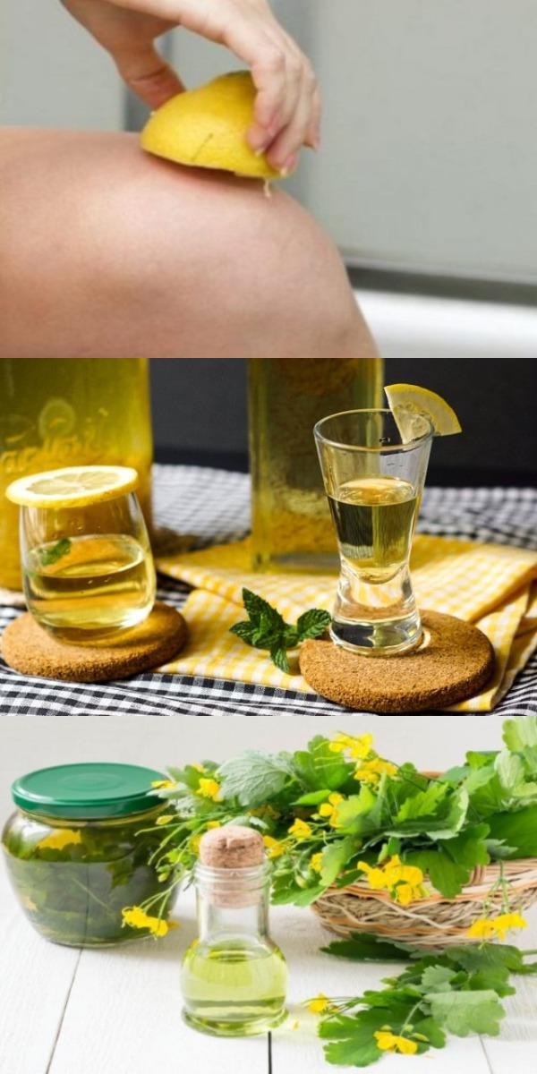 Один лимон в день — и боли в суставах как не бывало! То, что от нас скрывают врачи