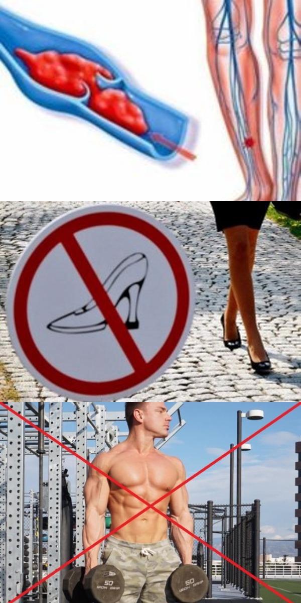 Врач-флеболог «Ни в коем случае не делайте эти 7 вещей при варикозе!»