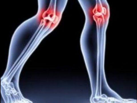 Остановите остеоартрит! Пейте этот чай и вы быстро восстановите хрящи и остановите развитие остеоартрита!